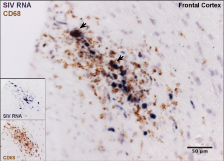 Image Credit: Williams Lab - SIV-infected macrophages comprise lesions in the frontal cortex of an SIV-infected rhesus macaque that developed AIDS with SIV-associated encephalitis.